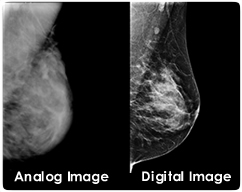 Digital vs Analog Mammogram